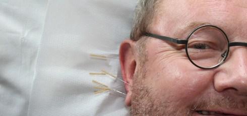 How an Acupuncturist can Help Fibromyalgia