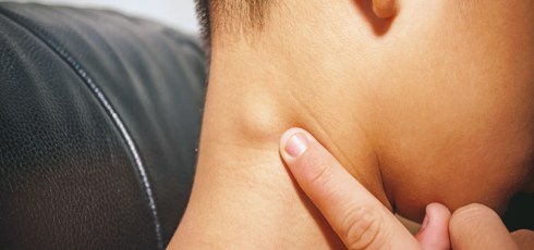 Does HIV Cause Swollen Lymph Nodes?