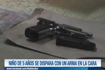 UN NIÑO DE 5 AÑOS SE DISPARÓ CON UN ARMA EN LA CARA