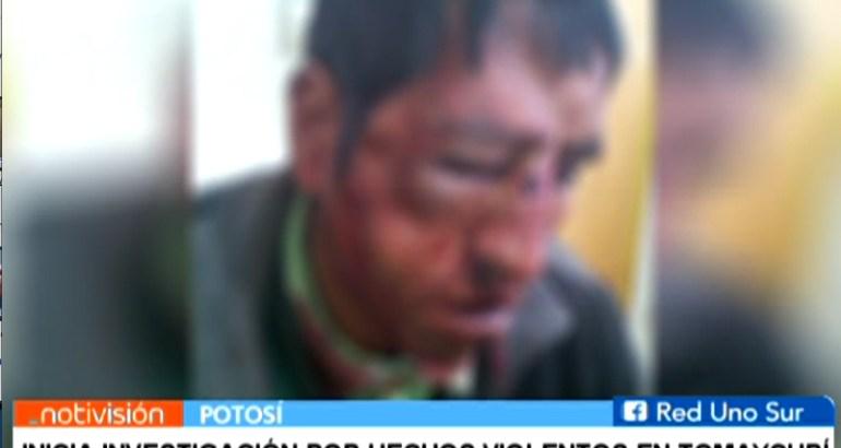 INICIA INVESTIGACIÓN POR HECHOS VIOLENTOS EN TOMAYCURÍ