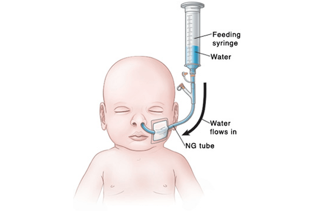 Reed Sensors in Pediatric Feeding tubes
