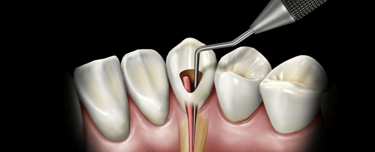 Rotary-Endodontics.jpg?fit=1200%2C488&ssl=1