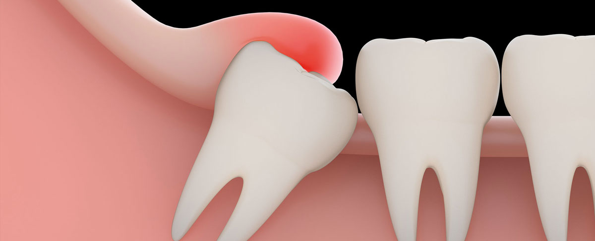 wisdom-tooth-extraction.jpg?fit=1200%2C488&ssl=1