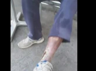 Drama unui bărbat din LUDUȘ – are ulcerații la picioare, dar afirmă că doctorii nici nu-l bagă în seamă