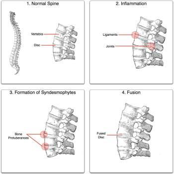 Ankylosing spondylitis process