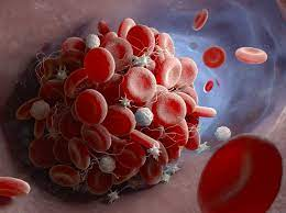 Groups find possible link between AstraZeneca COVID vaccine, blood clots |  CIDRAP