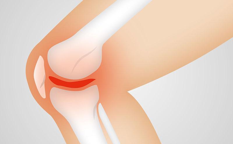 Arthrose : Schéma de l'articulation d'un genou touché par l'arthrose : le cartilage se dégrade et les inflammations créent des douleurs fortes