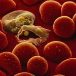 В Україні зафіксували випадок захворювання на малярію