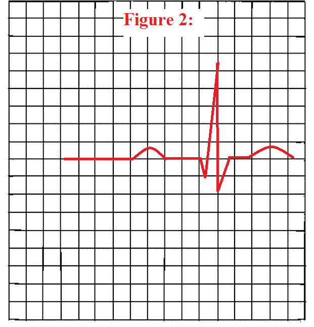 How To Measure The Pr Interval On An Ekg Strip