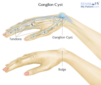 Ganglion Cyst of the Wrist and Hand   Rehab My Patient