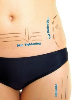 3D Lipo Targets problem areas