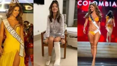 Photo of Miss Colombia se somete a operación en el abdomen y termina con una pierna amputada.