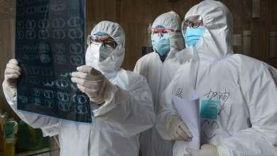 Photo of La mayoría de las personas infectadas con coronavirus muestra síntomas