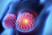 Photo of Advierten sobre la estrecha relación entre el cáncer de mama y de ovarios