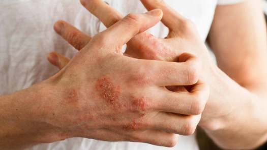 Risultati immagini per eczema psoriasi
