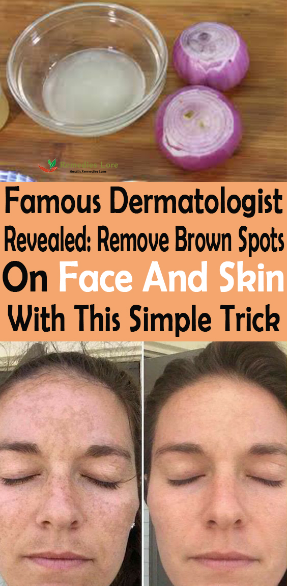 Famous Dermatologist Revealed: Remove Brown Spots On Face And Skin With This Simple Trick