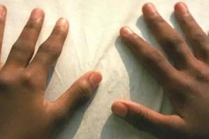 symptoms of juvenile arthritis