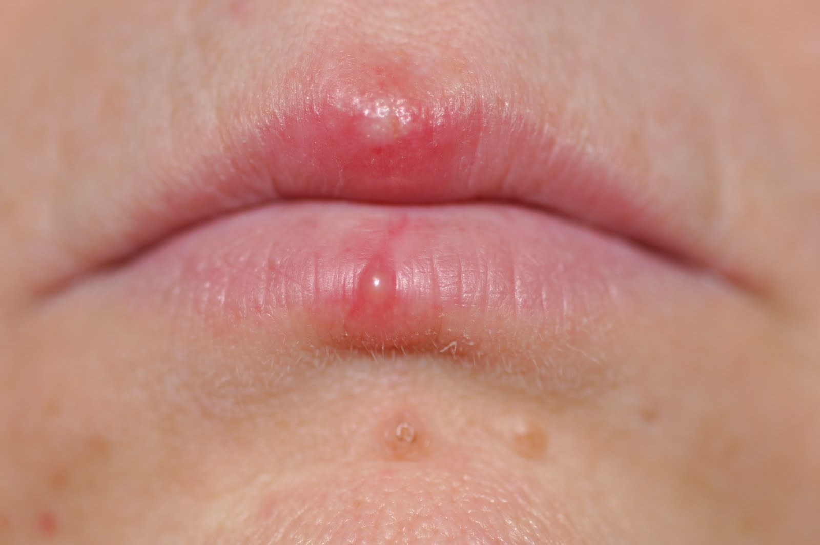 Herpes in the mouth symptoms