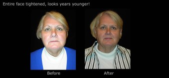 Entire face tightened, looks years younger