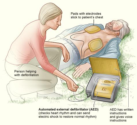 AED Defibrillator Maintenance | Heartland Medical Louisville KY