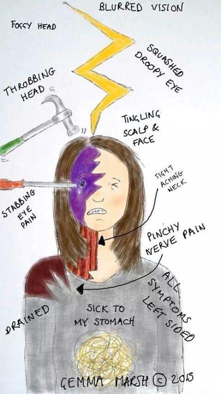 Πονοκέφαλος, ημικρανία, συμπτώματα, κεφαλαλγία