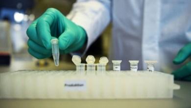 Photo of CONTRA COVID-19: Chinesa SinoVac começa etapa final de testes da vacina