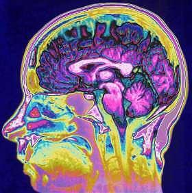 <B>Cervello, il filtro delle cose irrilevanti<br>Ecco perché alcuni ricordano più di altri</B>