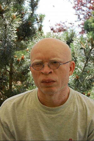 """Camerun, gli albini perseguitati dal pregiudizio Il racconto: """"Noi, braccati e sacrificati"""""""