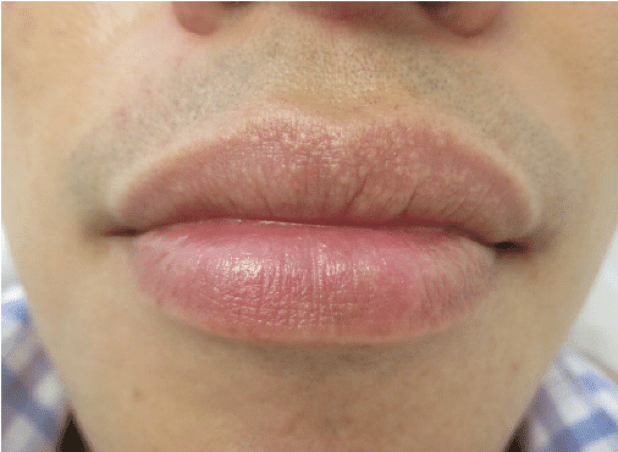 Upper Brown Spot Lip