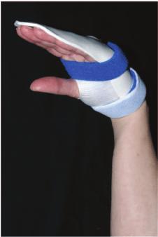 The Manchester short splint permits full wrist flexion.