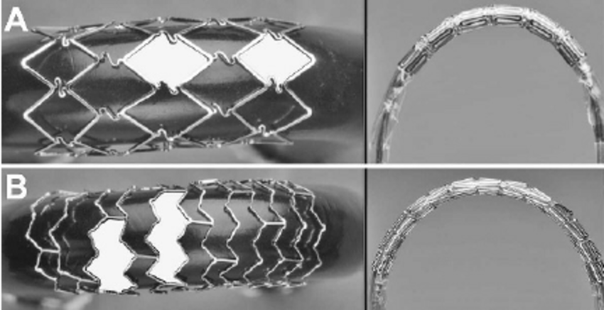 A Fully Supported Closed Cell Stent Demonstrating