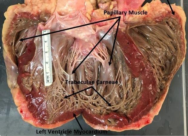 Anatomical Heart Diagram