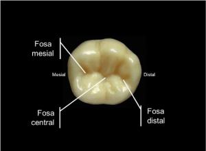 Configuración morfológica de las fosas del primer molar inferior | Download Scientific Diagram