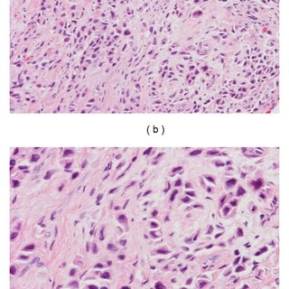 Plasmacytoid Urothelial Carcinoma Of The Bladder