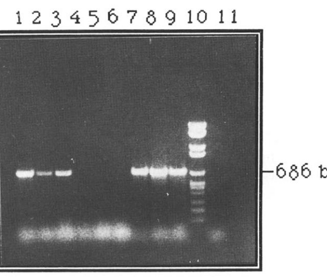 Detection Of Antigen A Nucleotide Sequence In Mdv I And Mdv 3 Dnas Using Primers Common To Antigen A Of The Two Viruses But Not To Mdv 2 Sb I