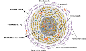 Depiction of the tumor structure Tumor mass is posed
