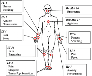 Acupuncture points hand out The figure illustrates the