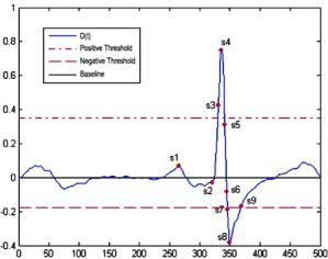 Data structure of QRS plex: QRS_COMPLEX | Download