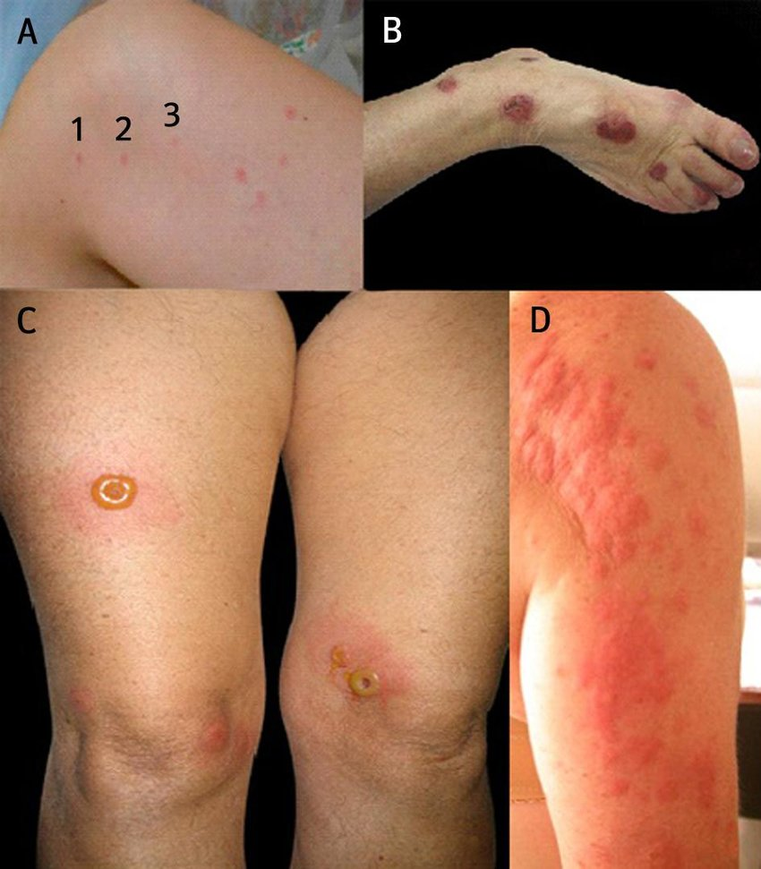 Clinical Manifestations Of Bed Bug Bites Three Or Four Skin Lesions Download Scientific Diagram