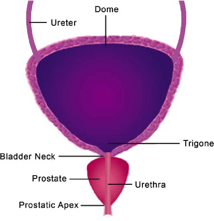Illustration Of A Cystoprostatectomy Specimen Sections