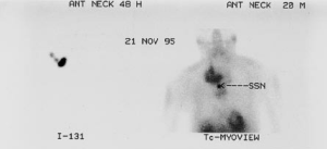 131 I scan (left panel) shows intense uptake in the thyroid region just | Download Scientific