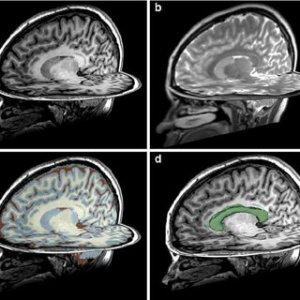 CT scan of a normal brain Left side is at the level of