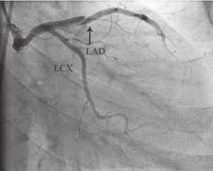 left anterior descending (LAD) artery dissection (arrow