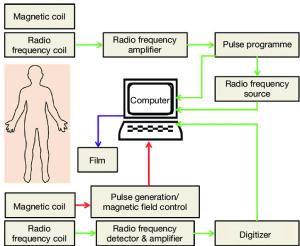 A schematic diagram of functional MRI scanning MRI
