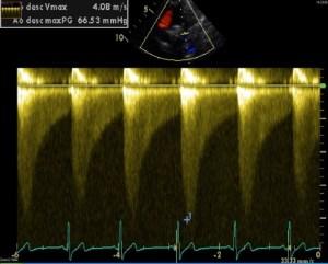 Echo Doppler image of typical 'sawtooth' with diastolic