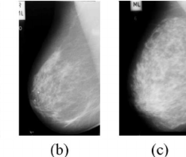 Example Mammograms Where The Breast Density Increases From A Birads I To