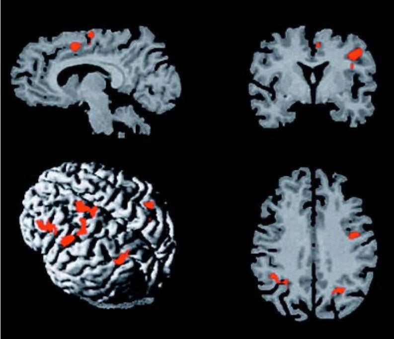 interior inferior mesial frontal lobe » Full HD MAPS Locations ...