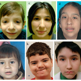 Facial features of individuals with 16p11.2 duplications. a: case 1; b:... | Download Scientific Diagram