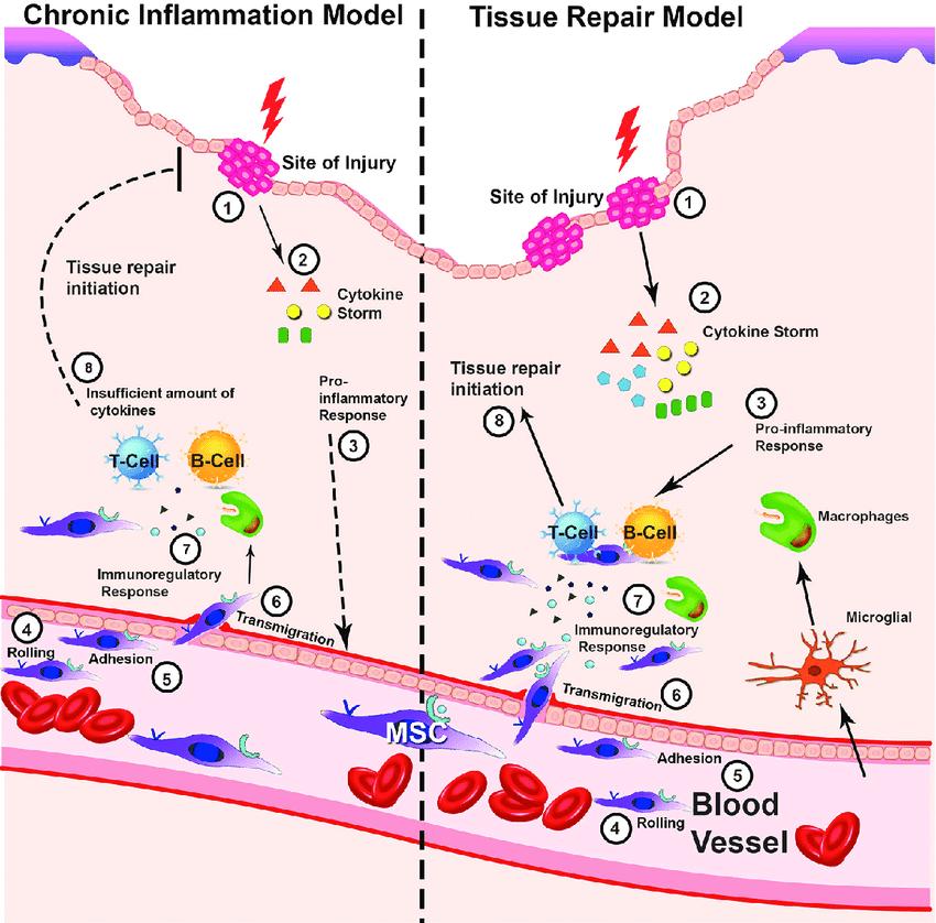 inflamation pathology - edulesson