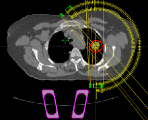 A transversal view of RapidArc plan setup in the Eclipse